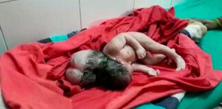 Nace una bebé con tres cabezas
