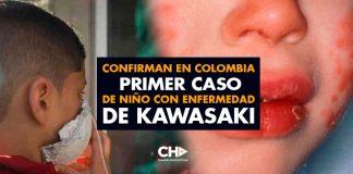 Confirman en Colombia primer caso de niño con enfermedad de Kawasaki